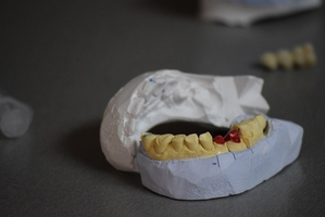 The best on the market Invisalign 15
